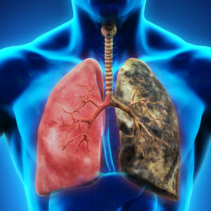 Yearly Lung Cancer Scans Are Advised for People 50 and Over With Shorter Smoking Histories image.